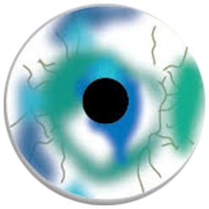 Fancy Dress Halloween Contact Lenses - WWZ (Usage:1,3,12 Months - 1 Pair)